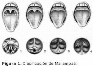 Clasificación de Mallampati