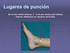 Microsoft PowerPoint - ACCESO INTRAÓSEO.ppt [Modo de compatibil