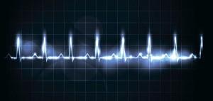 Arritmia Cardíaca – Caso Clínico